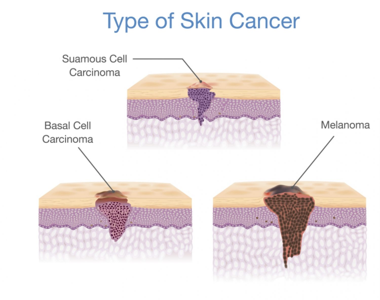 Skin Cancer Mudgeeraba Family Medical Centre
